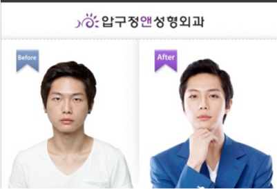 Not the most extreme example but with plastic surgery, anyone can be made to look like a K-pop star!